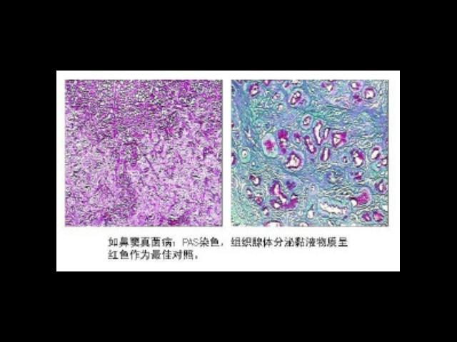 上海如何使用糖原染色试剂盒报价 苏州君欣生物科技供应