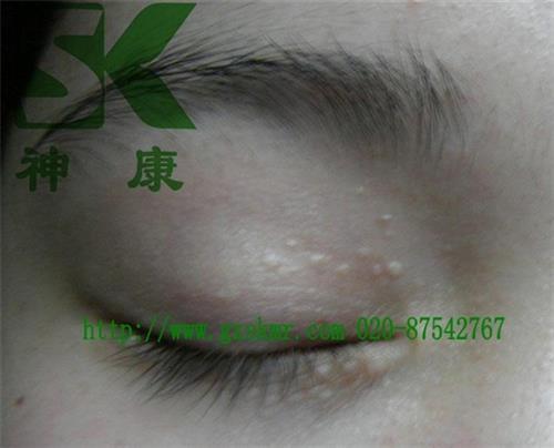 脂肪粒是汗管瘤吗,温州汗管瘤,神康